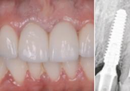 Takojšnja obremenitev enojnih implantatov v anteriorni maksili: enoletna klinična študija, izvedena na 34 pacientih