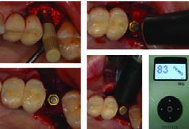 Trije načini napovedovanja primarne stabilnosti implantatov